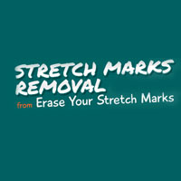 Erase Your Stretch Marks Coupon Codes and Deals